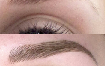 Cosmetic eyebrow tattoo: before and after photos